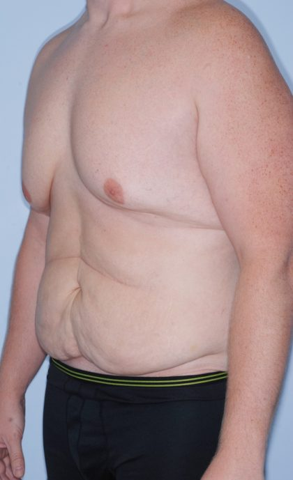 Gynecomastia Before & After Patient #930