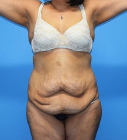 Tummy Tuck Before & After Patient #769