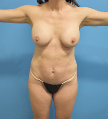 Tummy Tuck Before & After Patient #756