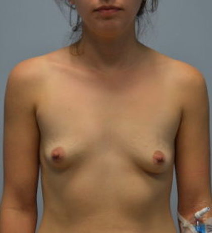 Breast Augmentation Before & After Patient #843