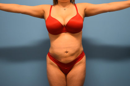 Liposuction Before & After Patient #934