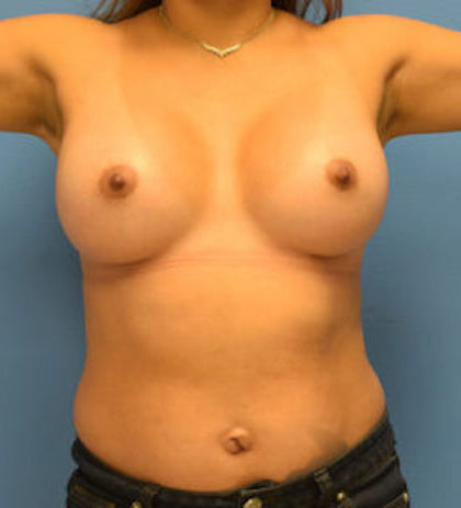 Breast Augmentation Before & After Patient #861