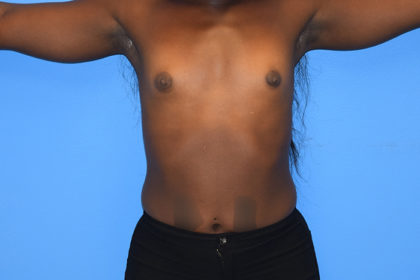 Breast Augmentation Before & After Patient #866