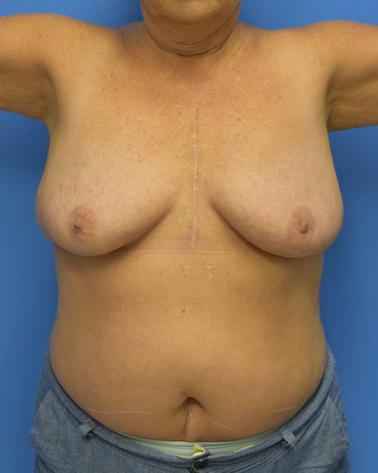 Breast Lift Before & After Patient #900