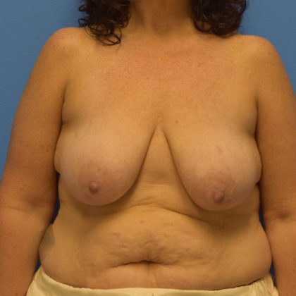 Breast Lift Before & After Patient #905