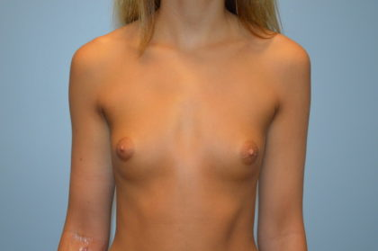 Breast Augmentation Before & After Patient #869