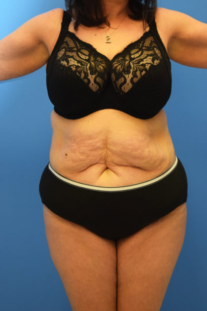 Tummy Tuck Before & After Patient #792