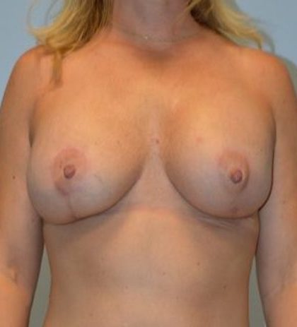 Breast Lift Before & After Patient #910