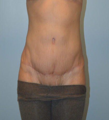 Tummy Tuck Before & After Patient #786