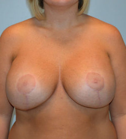 Breast Lift Before & After Patient #915