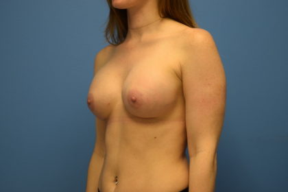 Breast Augmentation Before & After Patient #882