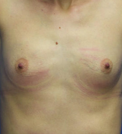 Breast Augmentation Before & After Patient #890