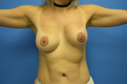 Breast Implant Revision Before & After Patient #925