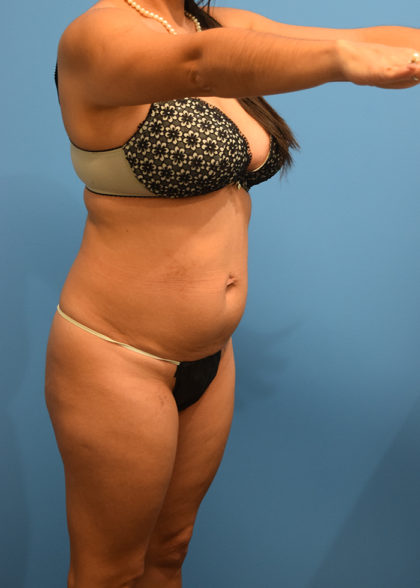 Liposuction Before & After Patient #950