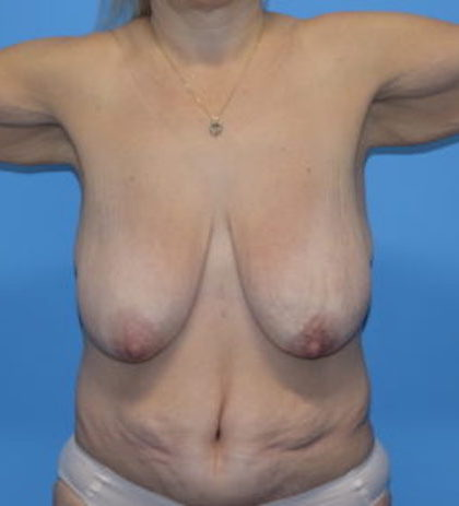 Breast Lift Before & After Patient #920