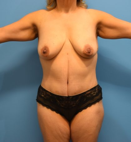 Tummy Tuck Before & After Patient #816