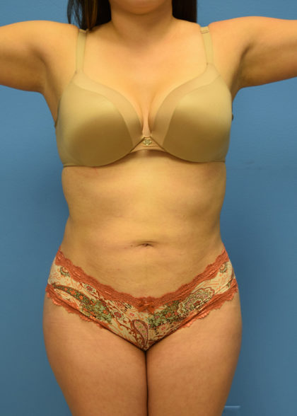 Liposuction Before & After Patient #955