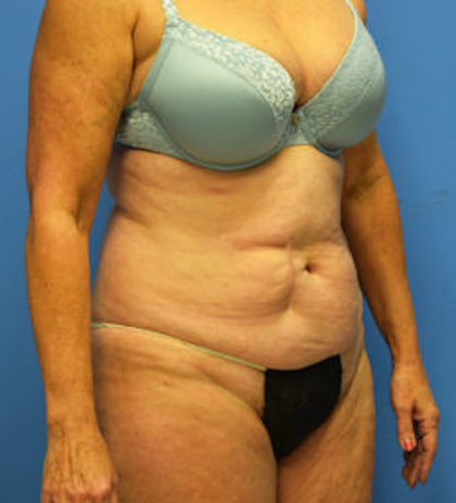 Tummy Tuck Before & After Patient #829