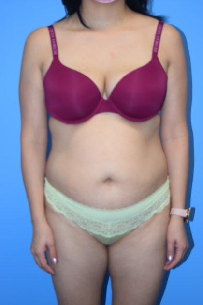 Liposuction Before & After Patient #1099