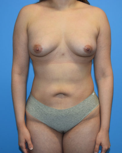Liposuction Before & After Patient #1135