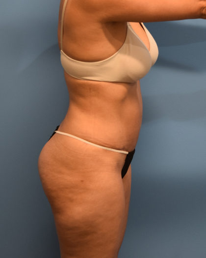 Tummy Tuck Before & After Patient #1142