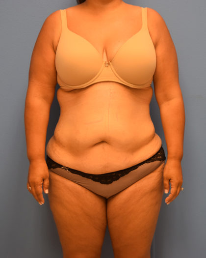 Tummy Tuck Before & After Patient #1147