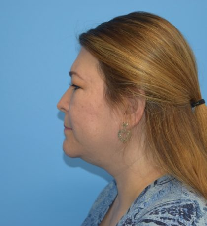 Liposuction Before & After Patient #1171