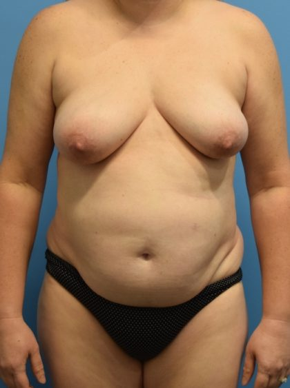 Tummy Tuck Before & After Patient #1178