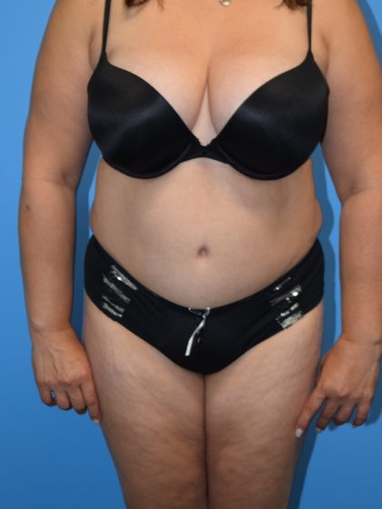 Liposuction Before & After Patient #1196