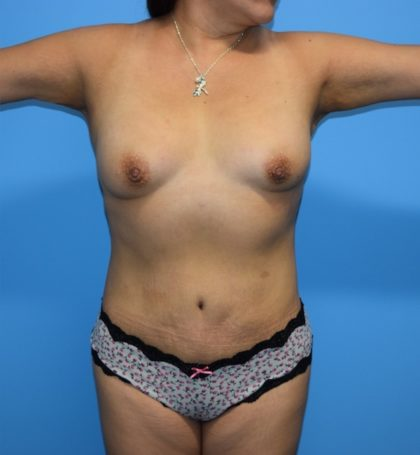 Tummy Tuck Before & After Patient #1254
