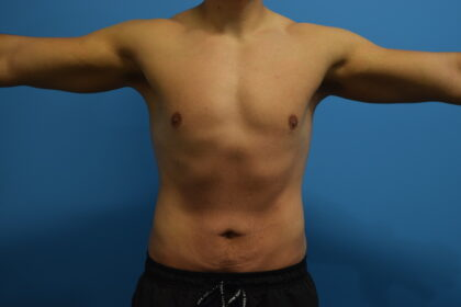 Tummy Tuck Before & After Patient #1520