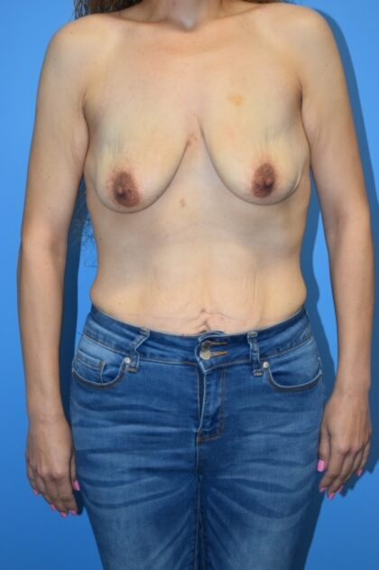 Breast Augmentation Before & After Patient #1280
